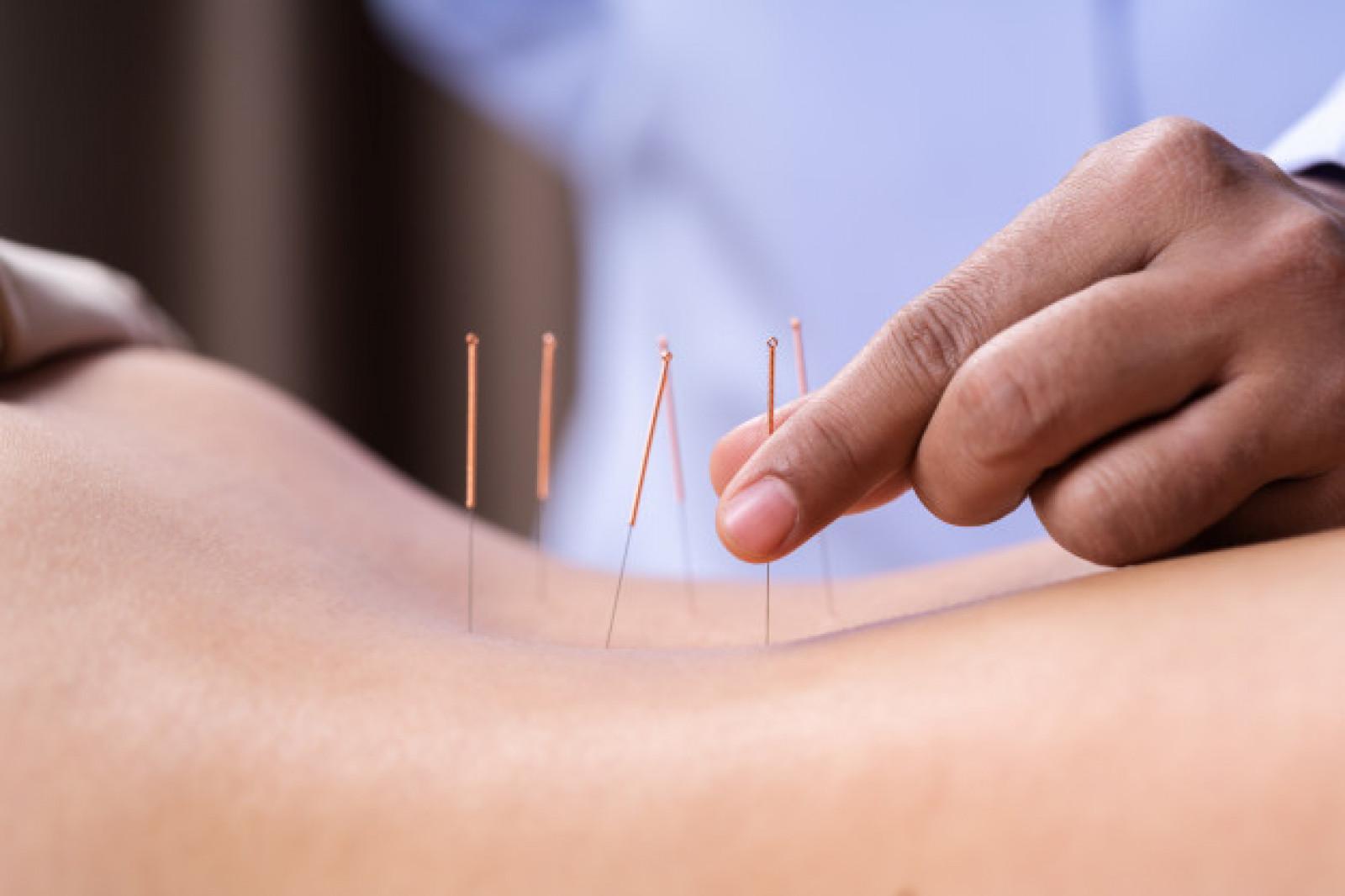 foto acupuntura